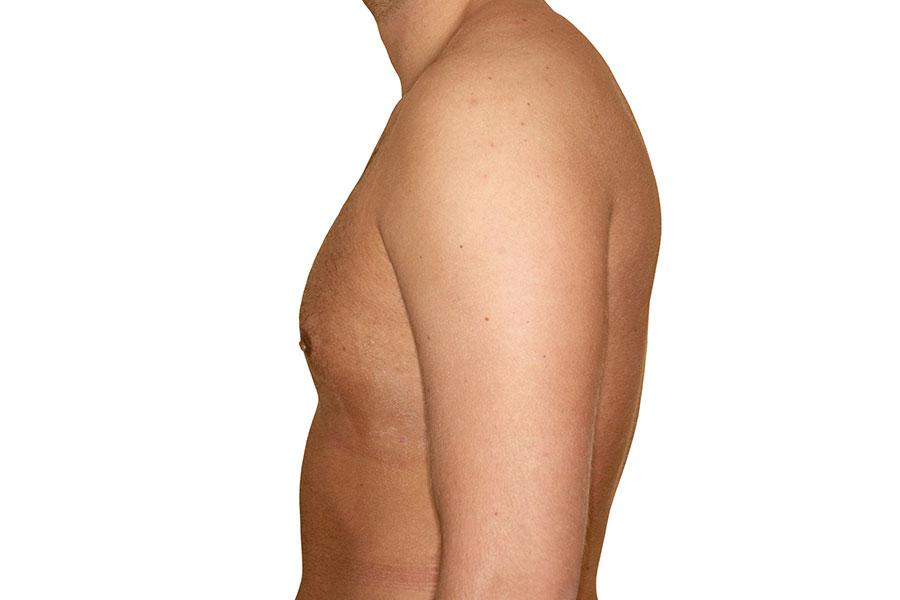 Männern brustvergrößerung bei Brustvergrößerung